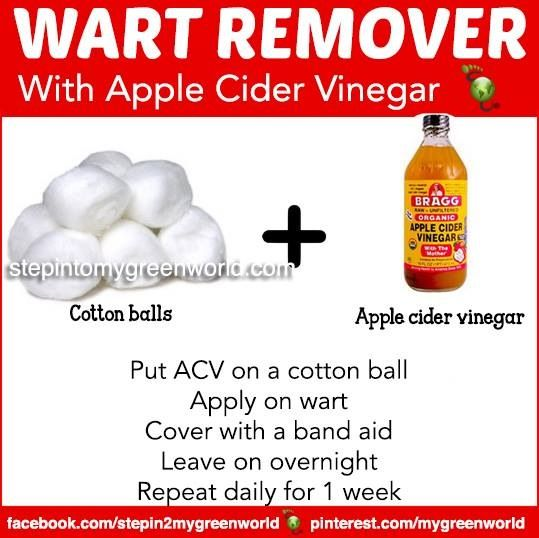 Anal warts apple cider vinegar