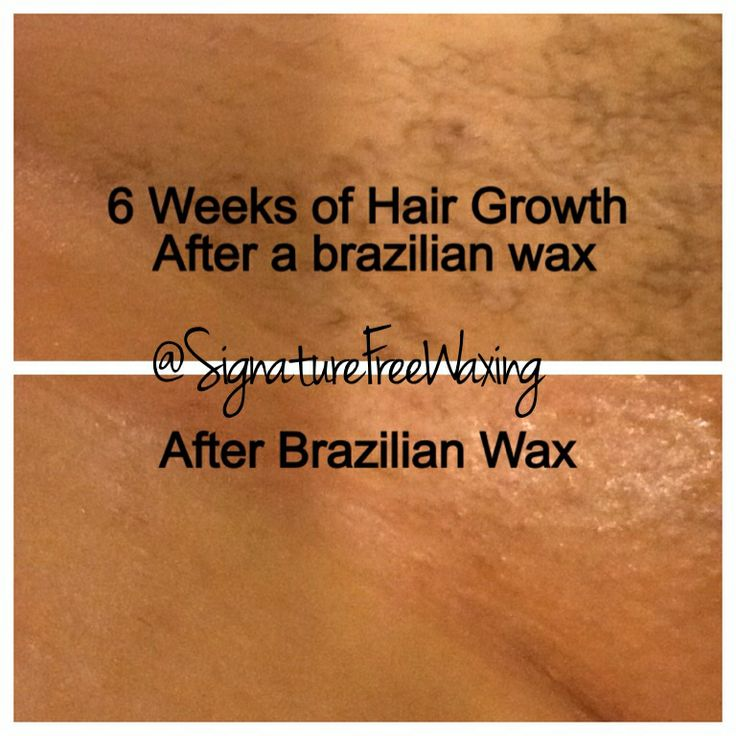 Top Photo: 6 Weeks After Receiving A Brazilian Wax At