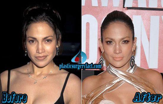 Jennifer Lopez Plastic Surgery Before and After | http://plasticsurgeryfact.com/jennifer-lopez-plastic-surgery-before-and-after-photos/