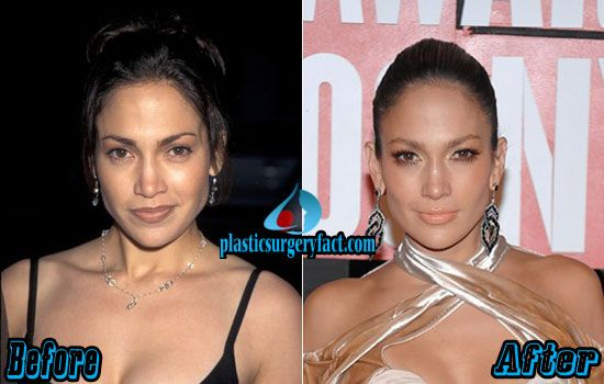 Jennifer Lopez Plastic Surgery Before And After Http