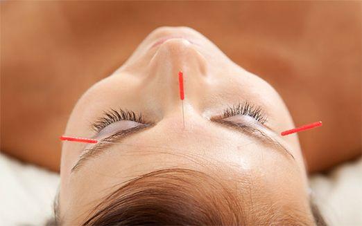Cosmetic Acupuncture sydney