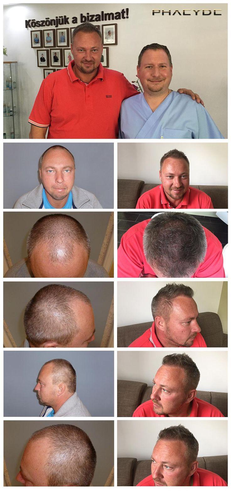 Transplantácia vlasov a pigmentácie vlasov pred po fotky - výsledky