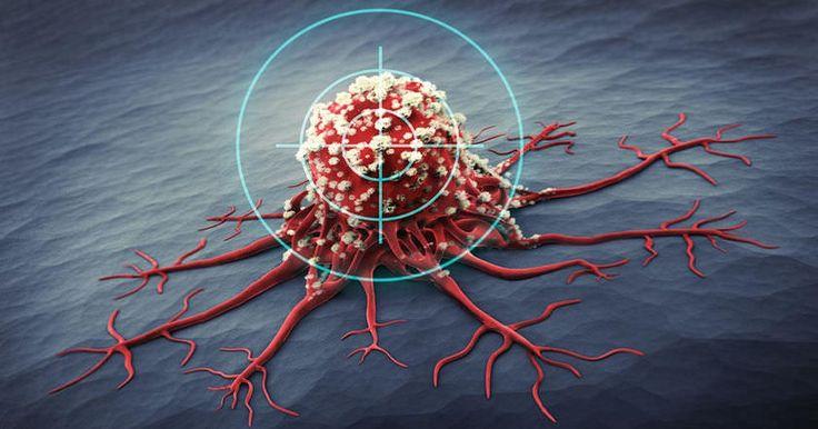 Ученые обнаружили, что бактерии, часто сопровождающие рак поджелудочной железы, позволяют опухоли выжить, разрушая препараты химиотерапии.