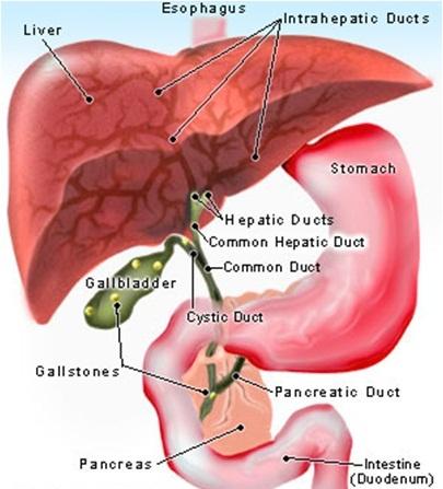 amoebic liver abscess pathology