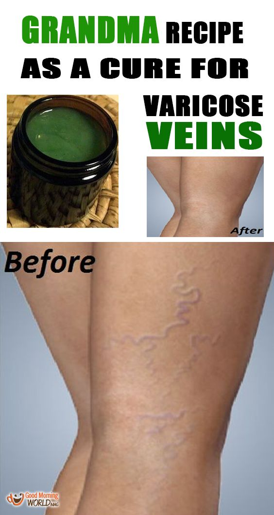 Varicose veins are mostly caused by external influence but this problem may be also caused by a bad nutrition. Trans fats and refined sugar are harmful for the blood vessels and a big factor in causing varicose veins.