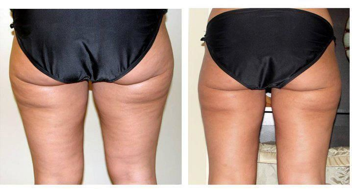 It works! Anti cellulite wrap with the apple cider vinegar #weightlossmotivation #AntiCellulite