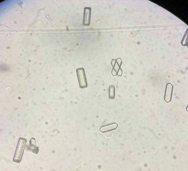 Cristais de acido hipurico na urina   laboratório ...