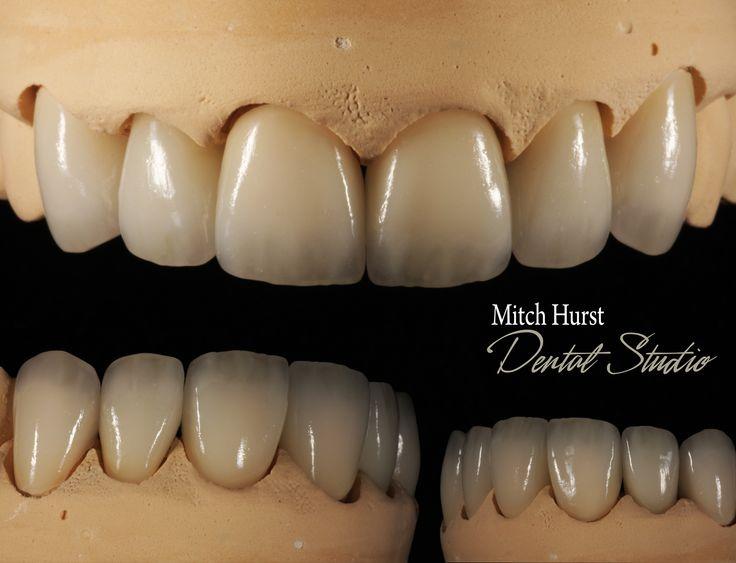 hurstdentalstudio.com  dental, crowns, ceramics, smile, beauty, aesthetics,