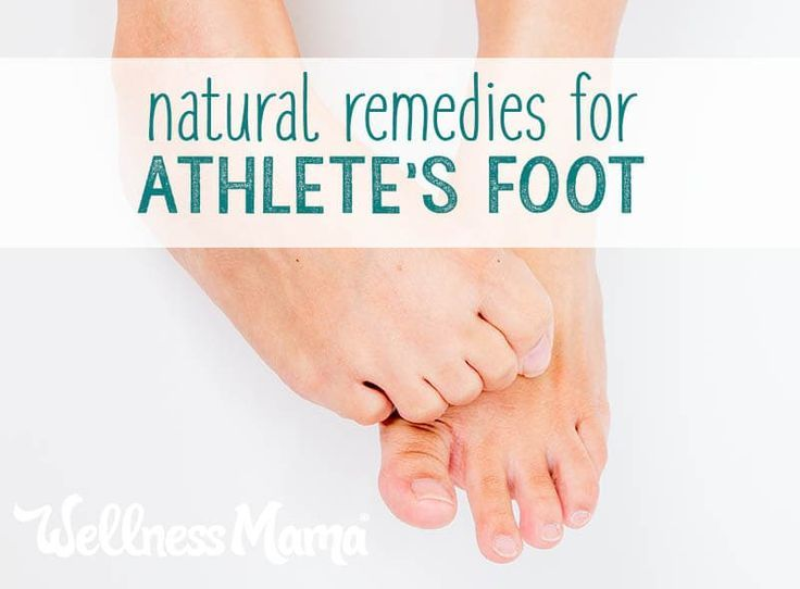 No one likes athlete's foot. Learn 5 effective natural remedies that are eas