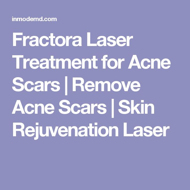 Fractora Laser Treatment for Acne Scars | Remove Acne Scars | Skin Rejuvenation Laser