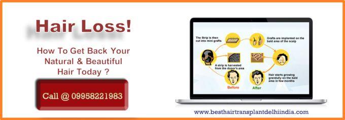 Best Hair Transplant Surgeon Delhi India: Hair Transplant in Delhi, India Cost and Expert As...