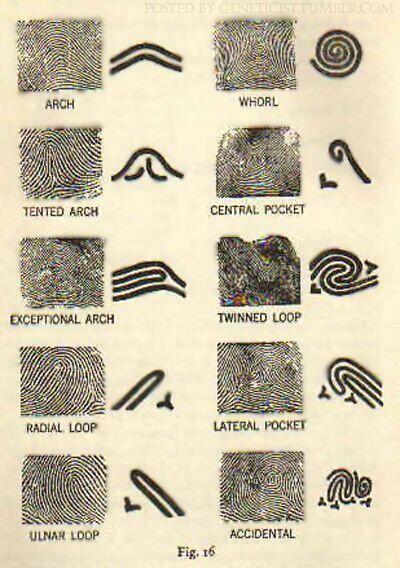 Fingerprint patterns. #fingerprint #pattern #forensic #science