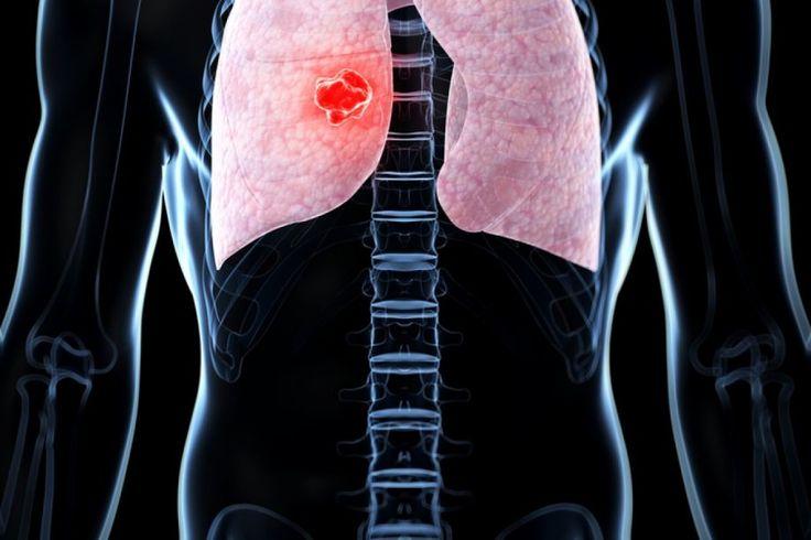 Στάδιο ΙΙΙ μη μικροκυτταρικός καρκίνος πνεύμονα