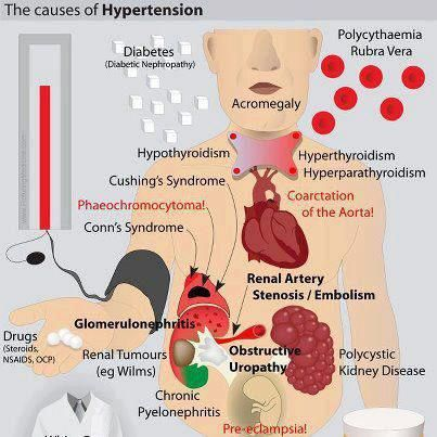 understanding pulmonary hypertension Pulmonary arterial hypertension, ipah) was 28 years, with a 68%  this  understanding still forms the basis for all the treatment options.