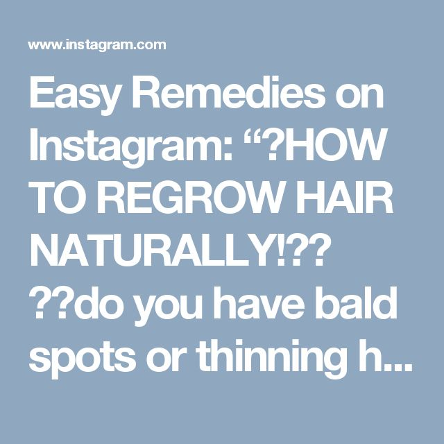 """Easy Remedies on Instagram: """"😱HOW TO REGROW HAIR NATURALLY!💃🏽 👴🏾do you have bald spots or thinning hair thats falling out? then you NEED to try this EASY and CHEAP…"""""""