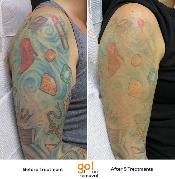696 best images about tattoo removal in progress on for How much is picosure tattoo removal