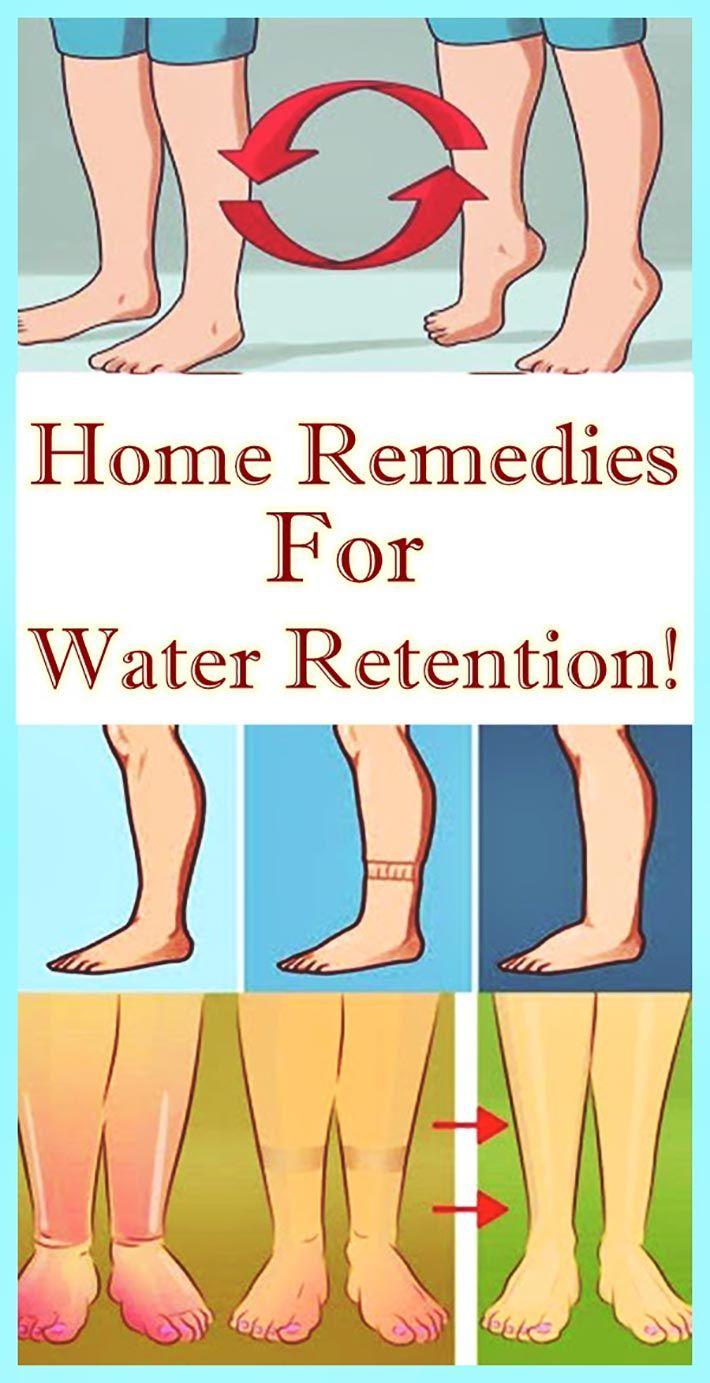 text/html   Water retention remedies, Water retention, Swollen feet remedy