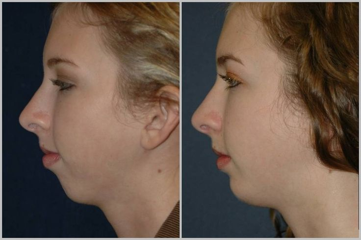 Chin augmentation is used to bring balance to the face. If ...
