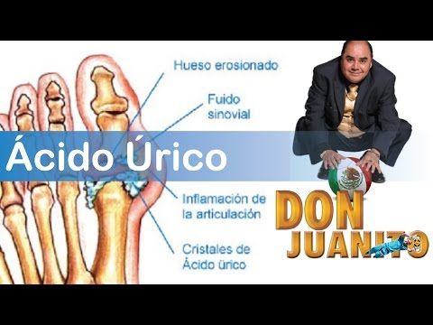 acido urico remedios caseros para bajarlo remedios naturales para acido urico y gota que dieta puedo hacer para la gota