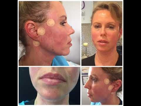 The 25 best face lift tape ideas on pinterest instant face lift new revolutionary aptos threads mini facelifts sydney cbd wahroonga perth canberra new 3rd generation aptos threads lunch time mini face lift solutioingenieria Choice Image