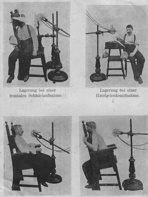 How to Position Yourself for an X-Ray in 1910 | Mental Floss