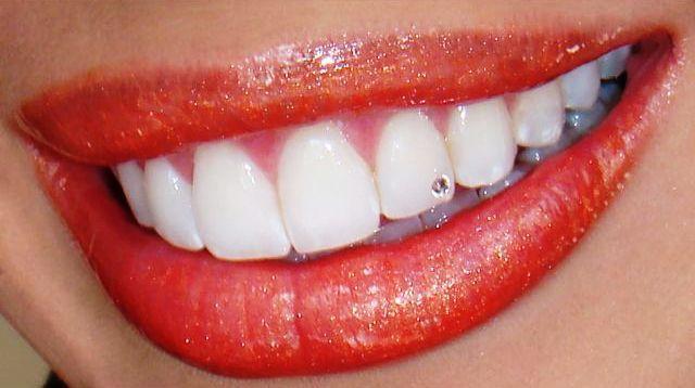 бриллиант на зубах фото проверит ее