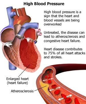 Treatment for high blood pressure can be done, but only if you know what blood pressure drugs or medication to use. Visit http://www.youtube.com/watch?v=LockxS7l-uo to find more information