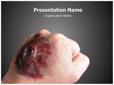 Burned Hand PowerPoint Presentation Template is one of the best Medical PowerPoint templates by EditableTemplates.com. #EditableTemplates #Bad #Medical #Gore #Burn #Medicine #Illness #Wound #Skin #Ulcer #Healthcare #Body #Scar #Wounded #Trauma #Health #Burnt #Scald #Inflamed  #Arm #Blister #Pain #Burned Hand #Hand #Inflammation #Aid #Person #Palm #Part #Injury #Human