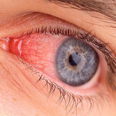 Dangerous RA Symptoms You Shouldn't Ignore – Everyday HealthDeb