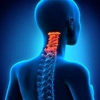 L'arthrose cervicale affecte surtout les personnes de plus de 40 ans. Les microtraumatismes répétés de la zone cervicale augmentent le risque d'arthrose à ce niveau, comme les malformations du rachis cervical, le fait d'avoir subi un traumatisme (comme le coup du lapin), ou encore les personnes ayant une profession sollicitant cette zone de la colonne vertébrale.