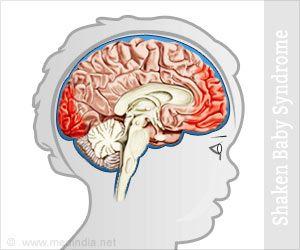 Shaken Baby Syndrome// Abusive Head Trauma