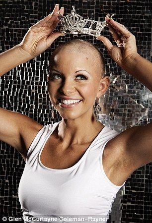 Beauty queen suffering from alopecia could be first Miss America with no hair. I have seen a couple interviews about her! She is such an inspiration!