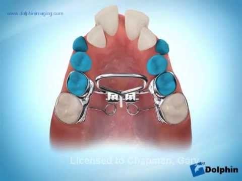 63 best orthodontic appliance images on Pinterest Dental health