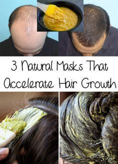 3 Natural Masks That Accelerate Hair Growth                                                                                                                                                                                 More