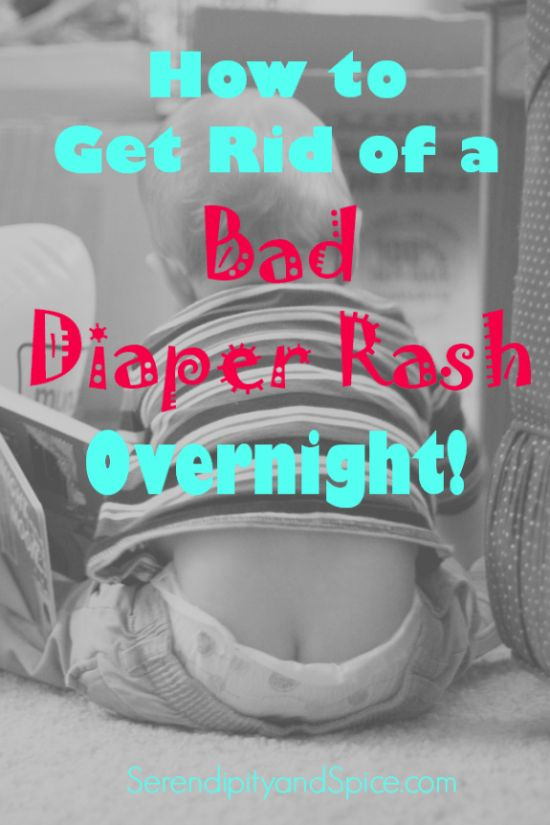 Super Tip Tuesday: How to Get Rid of Diaper Rash Overnight! ~ http://serendipityandspice.com