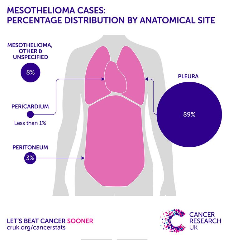 Mesothelioma incidence statistics | Cancer Research UK