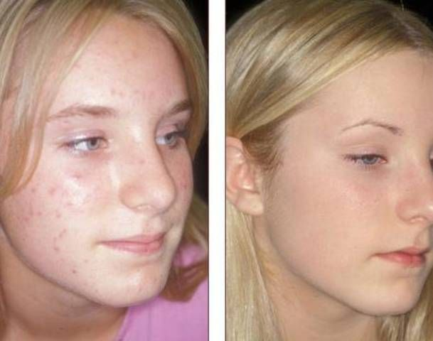 Tretinoin for acne scars review / Metformin cancer cure