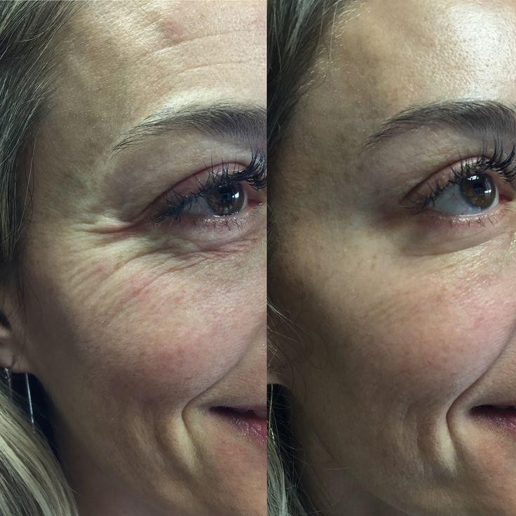 A little bit of Botox under the eye can eliminate crepey skin and fine lines. Treatment by Gina Jones, in Austin.