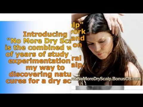 """treatment for dandruff - dry scalp remedies - dandruff solutions - how to treat dandruff -  CLICK HERE for The No. 1 Itchy Scalp, Dandruff, Dry Flaky Sore Scalp, Scalp Psoriasis Book! #dandruff #scalp #psoriasis  – treatment for dandruff – dry scalp remedies – dandruff solutions – how to treat dandruff """"No More Dry Scalp"""" is going to help... - #Dandruff"""