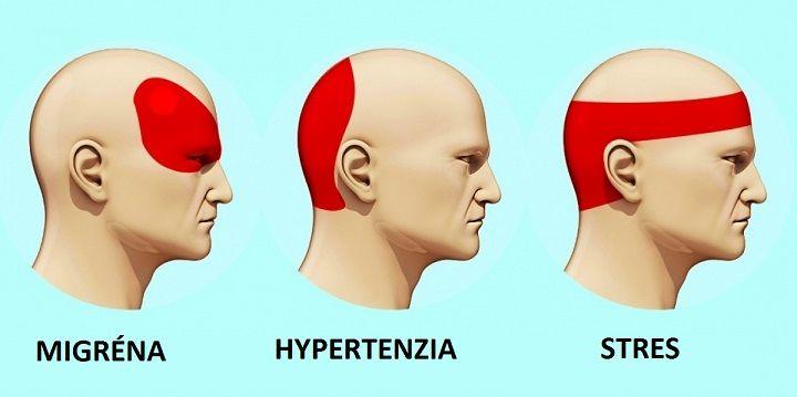Jak se zbavit bolesti hlavy za 5 minut bez užití pilulek a léků |