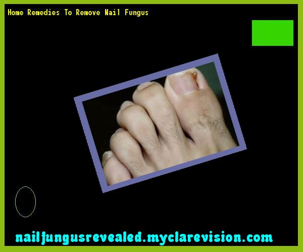Home remedies to remove nail fungus - Nail Fungus Remedy. You have nothing to lose! Visit Site Now