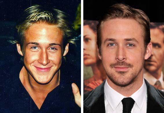 Ryan Gosling Nose Job