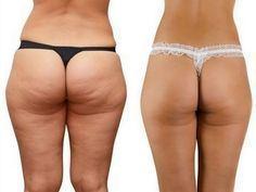 A gordura teimosa que esta em suas coxas, barriga, nádegas e braços é o pior pesadelo, especialmente para as mulheres! A celulite não conhece idade e provavelmente é uma das questões mais difíceis do corpo. No entanto, não há dúvida… Contin