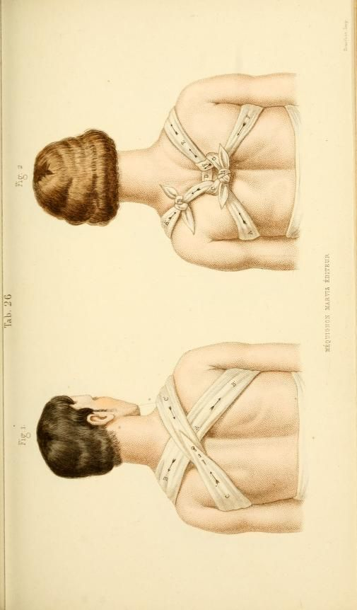 ☤ MD ☞☆☆☆ Manual of surgical bandages, devices and dressings, 1859 (https://pinterest.com/pin/287386019948326046). Tab. 26.