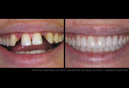 Get information about types of dental crowns (permanent, temporary, porcelain), problems (cap falls out, pain, broken or loose crown) and procedure cost. visit http://www.cosmetic-dentistry-nyc.com #cosmeticdentistry