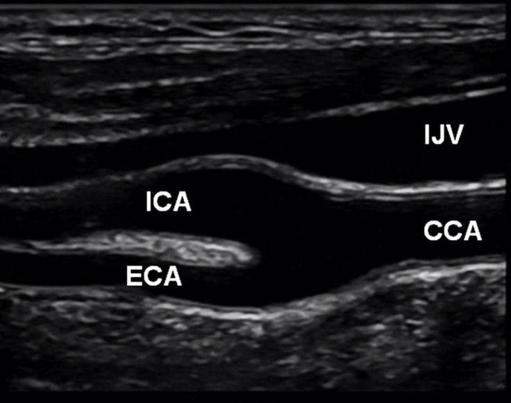 Ecografía carotídea. Carótida interna (ICA). Carótida externa (ECA). Carótida común (CCA). Vena yugular interna (IJV).