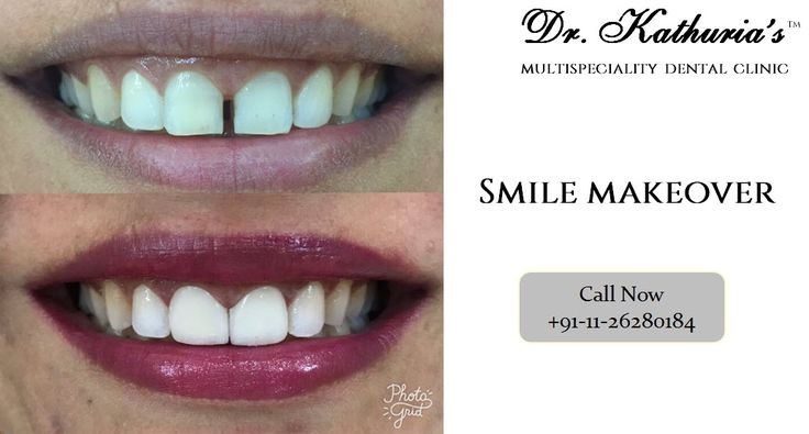 Smile Design by Dr. Sween Kathuria at Dr. Kathuria's Multispeciality Dental Clinic #SmileMakeover