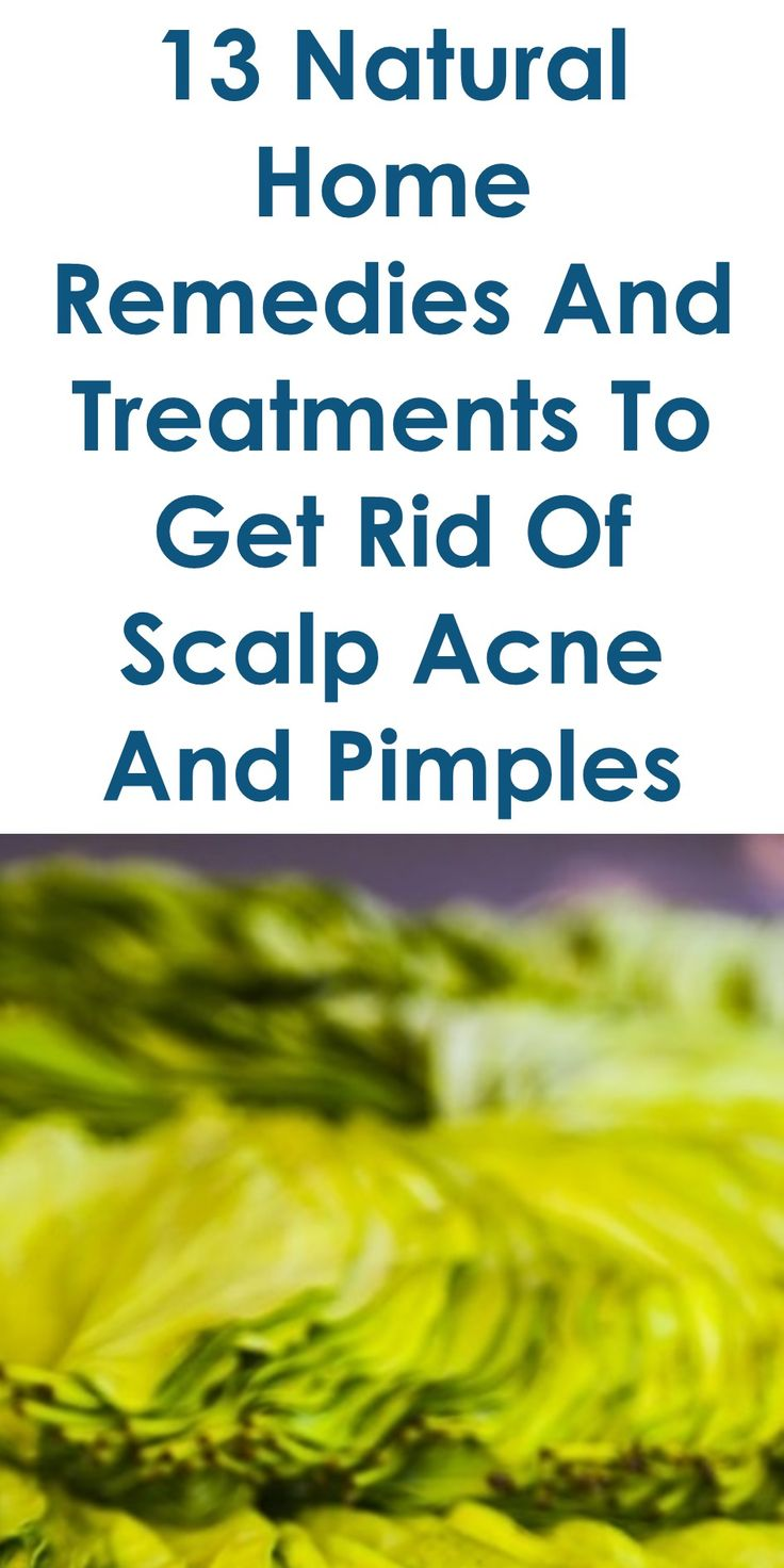 13 Quality Home Remedies To Get Rid Of Scalp Acne And Pimples