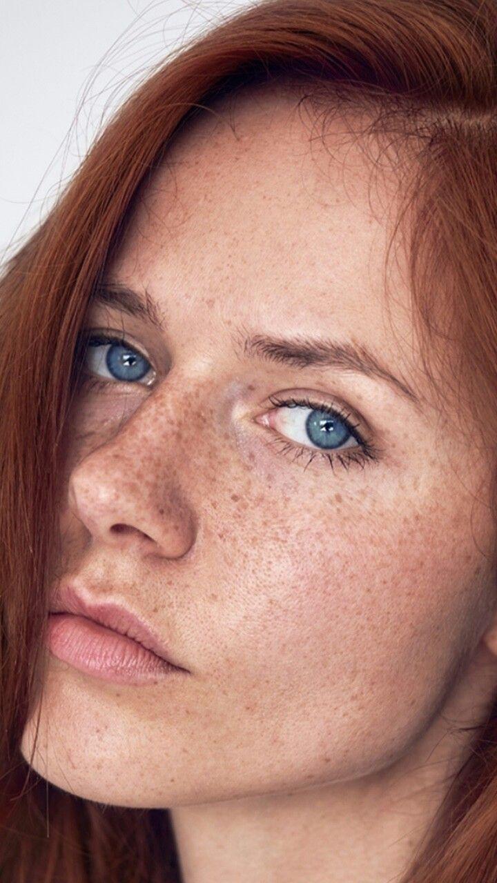 Freckels pics redhead