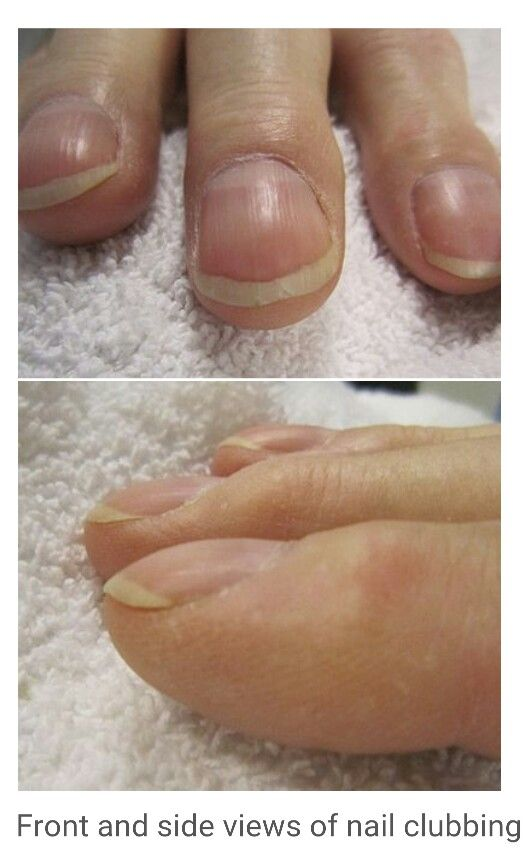 Nail Clubbing Is Associated With Lung Cancer Mainly Non-small-cell (54% Of All ) Interstitial ...